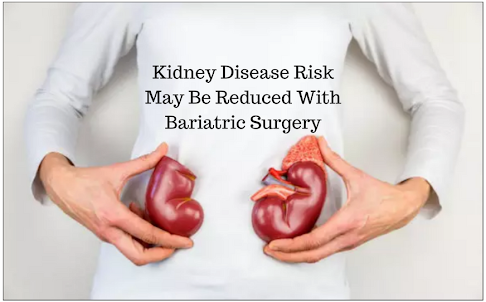 POSITIVE IMPACT OF BARIATRIC SURGERY ON KIDNEYS: A SWEDISH STUDY FINDINGS