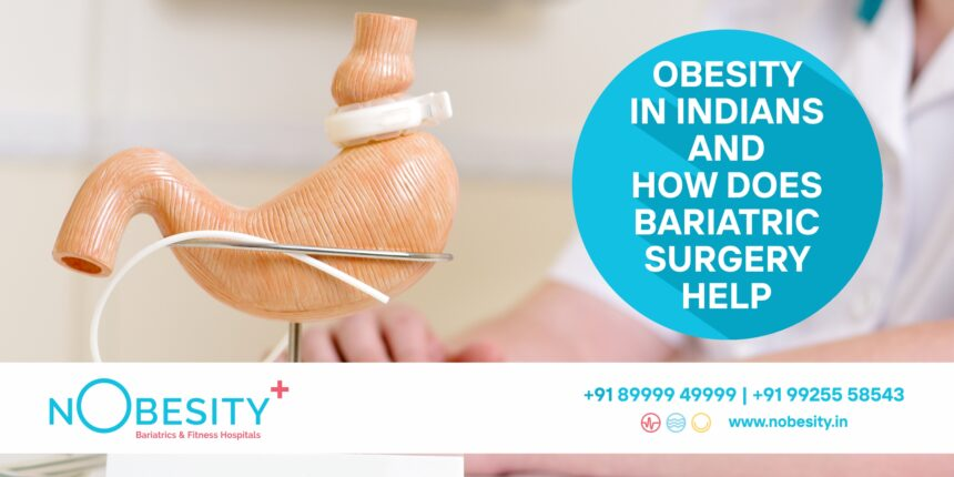 Obesity In Indians and How does Bariatric Surgery Help?