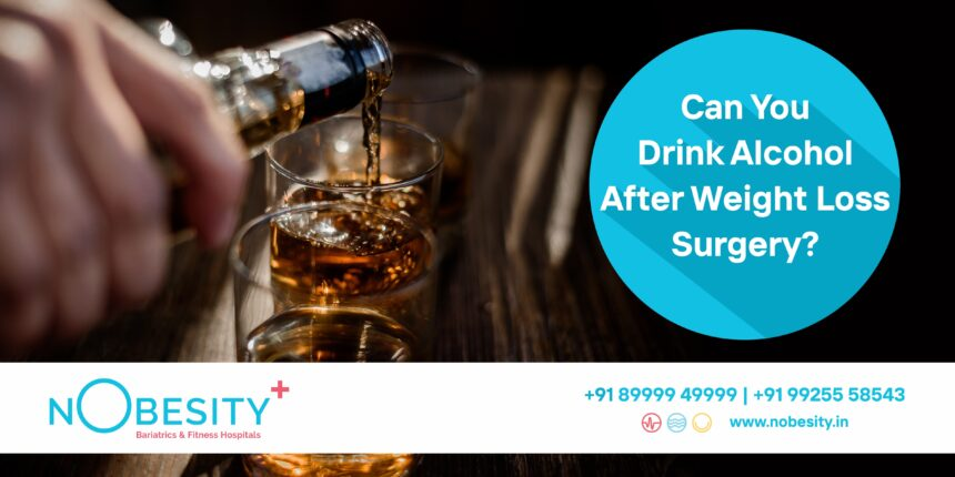 Is Drinking Alcohol Safe Post – Bariatric Surgery?