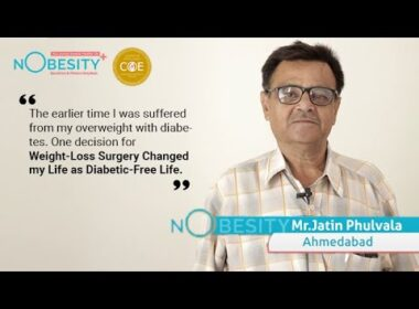 Best Centre for Bariatric Weight loss treatment in Ahmedabad, Gujarat   Patient's Speak @Nobesity